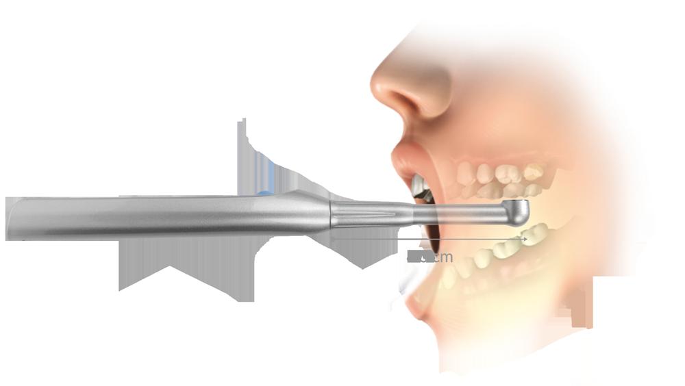 smartlite_intra-oral_access-1